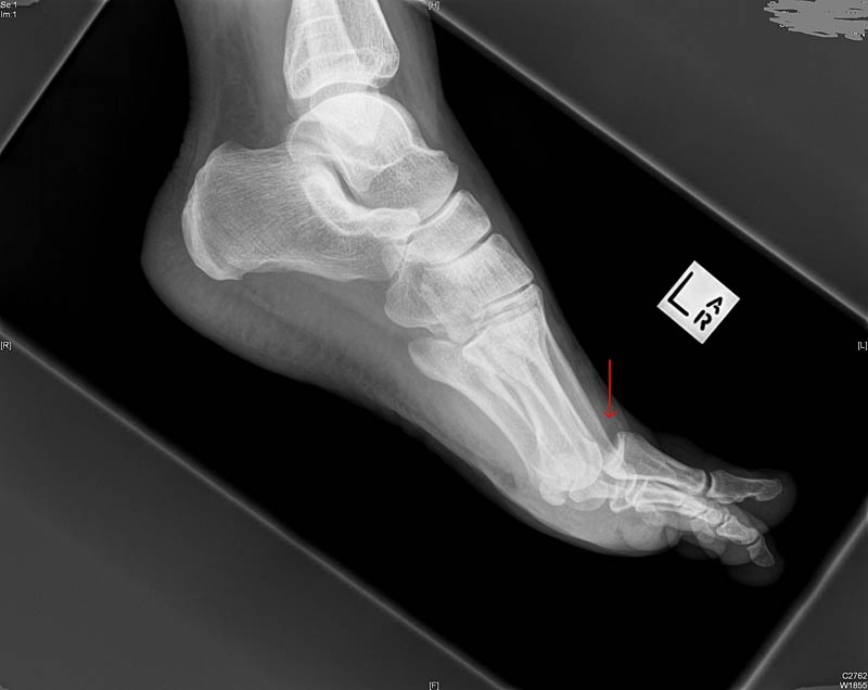 Not my foot.  But I'm guessing it looked something like this in the actual x-ray.